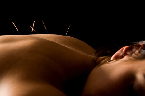 Acupuncture at Freda Dunn's Clinic - Doonan, Noosa Hinterland, Sunshine Coast